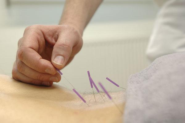 chevron island physio - dry needling